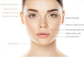 Botox sau acidul hialuronic? Care este cea mai buna optiune?